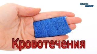 видео Оказание первой помощи при кровотечениях