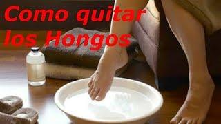 Como quitar los Hongos de las uñas de los pies👠
