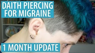 Daith Piercing for Migraine - 1 Month Update