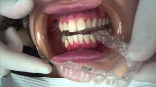 Getting Invisalign in Narberth (Lower Merion) and Blue Bell PA by Orthodontist Dr David Markowitz