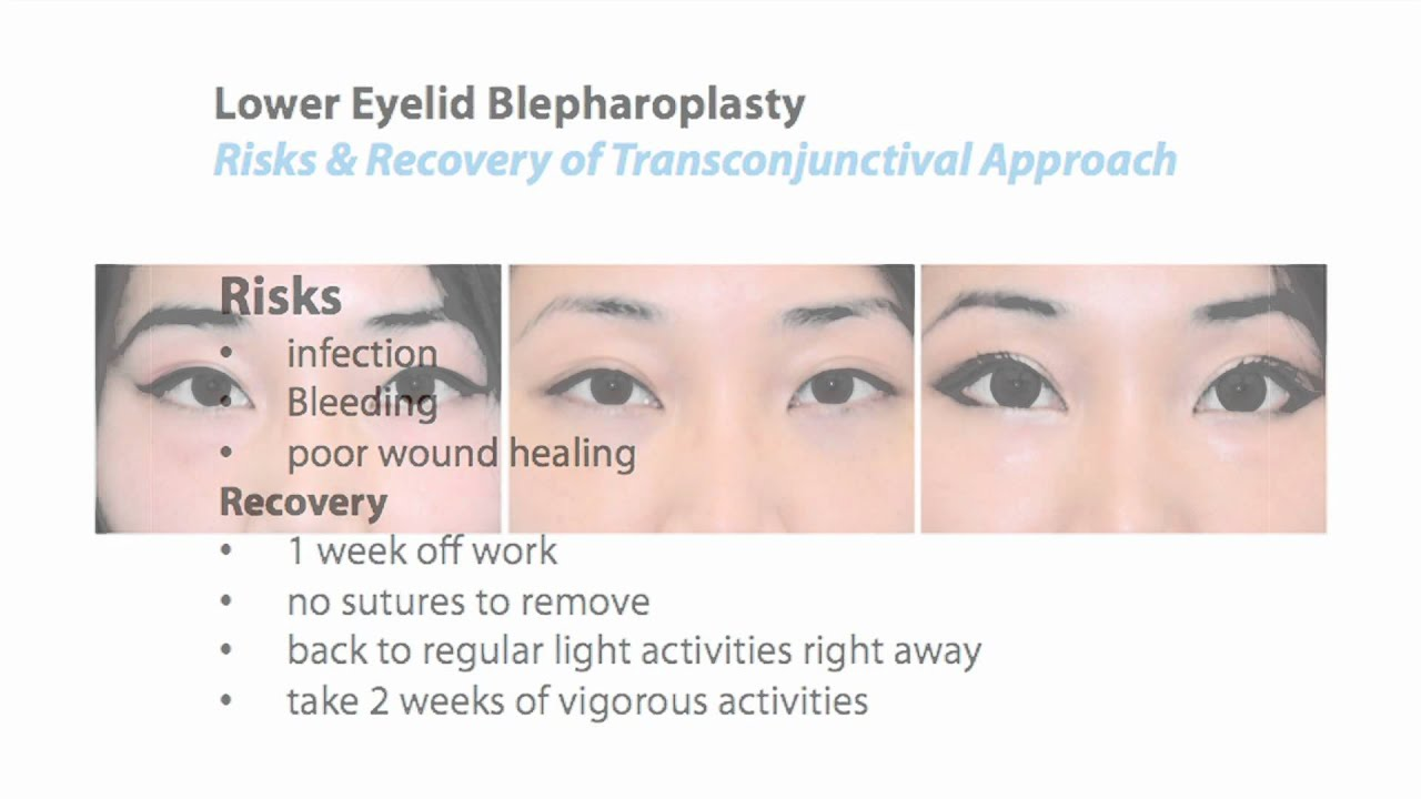 Blepharoplasty Of The Upper Eyelid Stock Photo - Download ... |Lower Blepharoplasty Recovery Photos