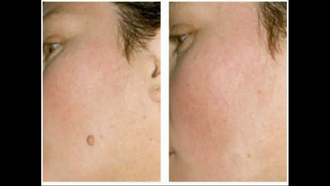 how to get rid of skin tags australia