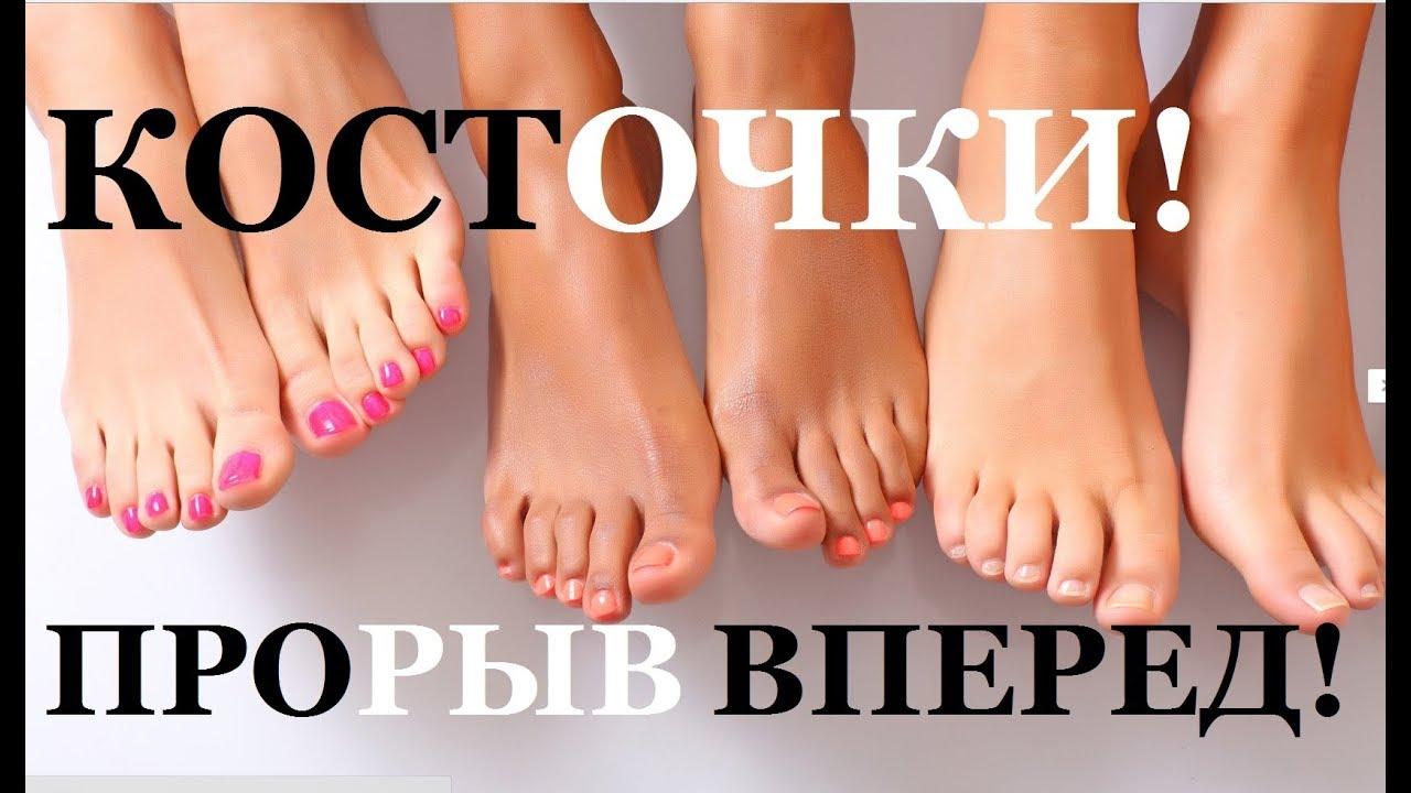 Лечение народными средствами косточек на ногах