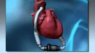 Ny teknik utmanar hjärtkirurgin  – Forskning i framkant