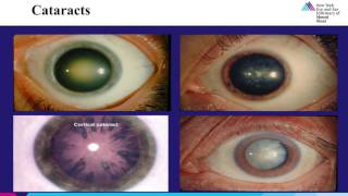 Elderly Eye Care Part 4  Cataracts
