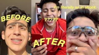 i-finally-got-my-braces-removed