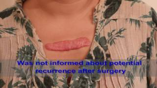 Chest Keloids - Mistakes to Avoid