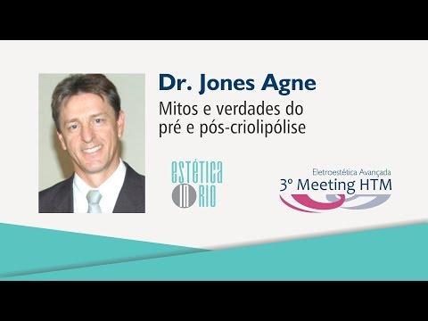 """Palestra: """"Mitos e verdades do pré e pós-criolipólise"""" – Dr. Jones Agne"""