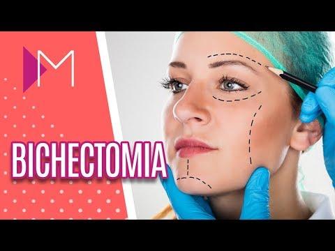 Tudo o que você precisa saber sobre BICHECTOMIA - Mulheres (22/08/18)