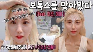 이마, 미간 보톡스 후기!! (feat. 주름보톡스)