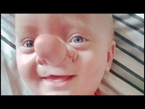 Top 5 Niños Nacidos Con Características Que NO Creerás Que Existen