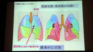 愛知県がんセンター50周年記念特別公開講座(3)【肺がん外科治療の...