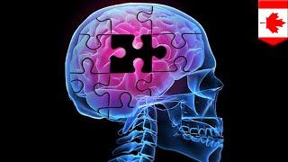 ALZHEIMER - Perkembangan penemuan penyakit alzheimer Subscribe to TomoNews....