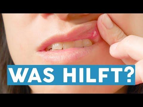 Zungengeschwür