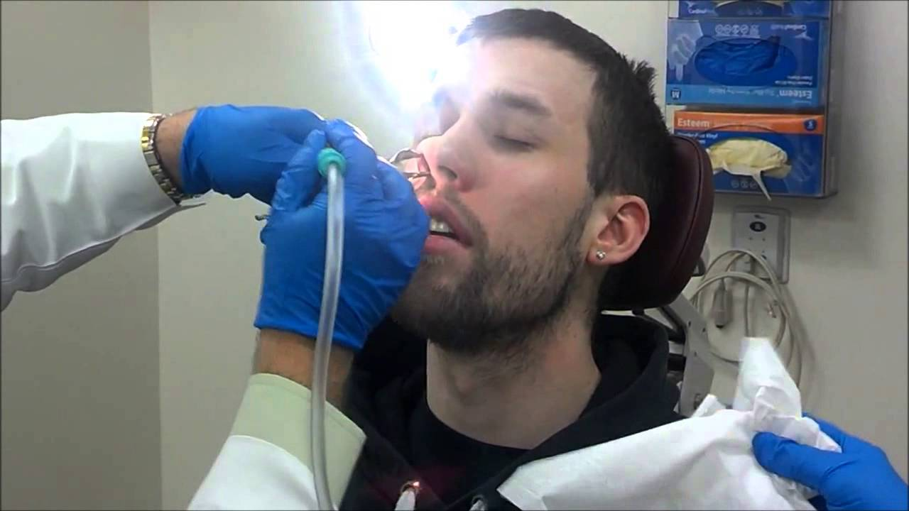 Nasal Stents Taken Out  Deviated Septum  Nasal Obstruction  Turbinate Hypertrophy  1w After
