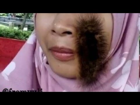 Heboh!!! Wanita Memainkan Ulat Bulu di Wajahnya