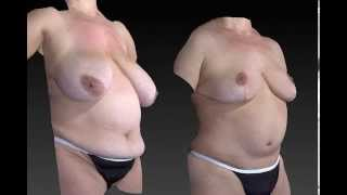 Mommy Makeover 3D Before and After - 2