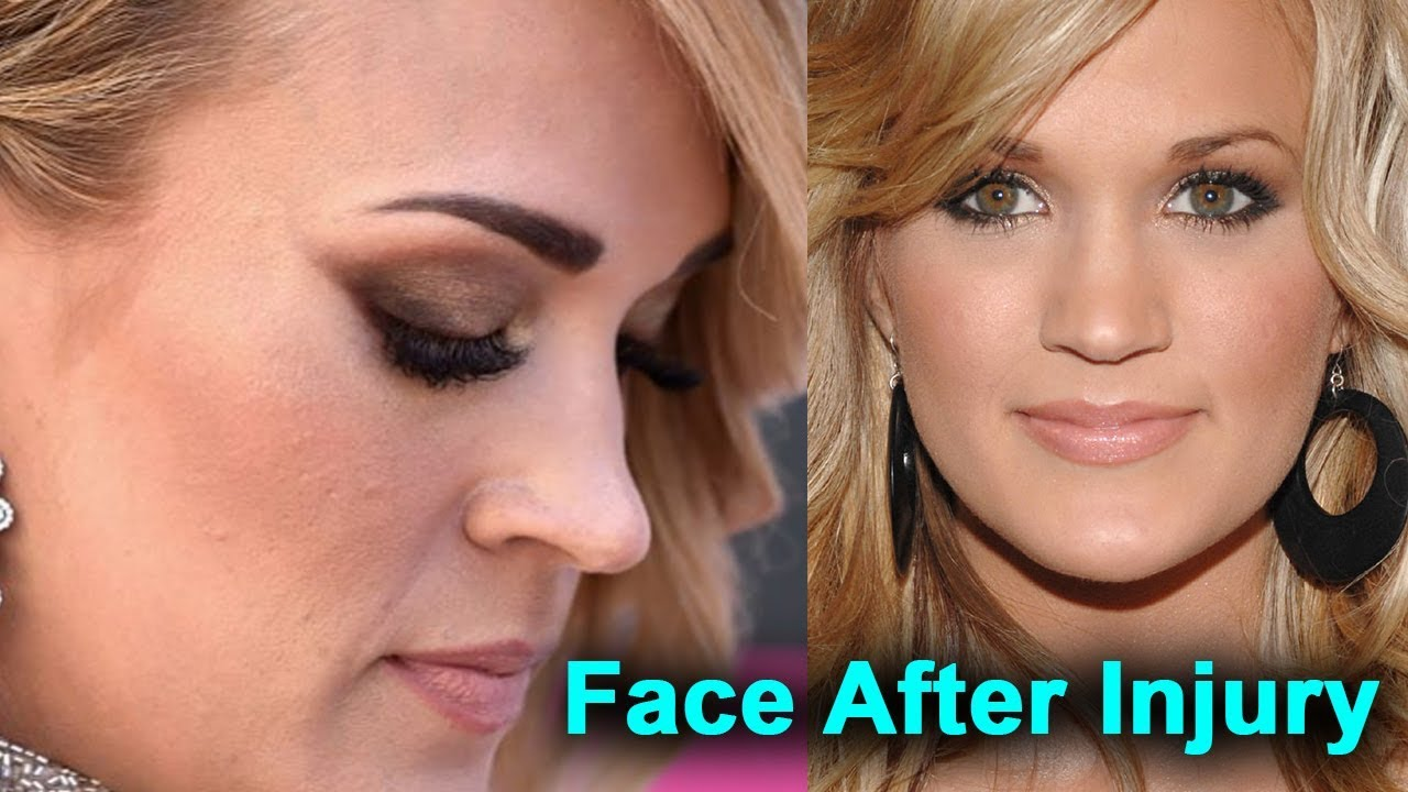 Carrie Underwood's Face After Injury: What Fans Could Expect To See #1