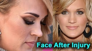 Carrie Underwood's Face After Injury: What Fans Could Expect To See