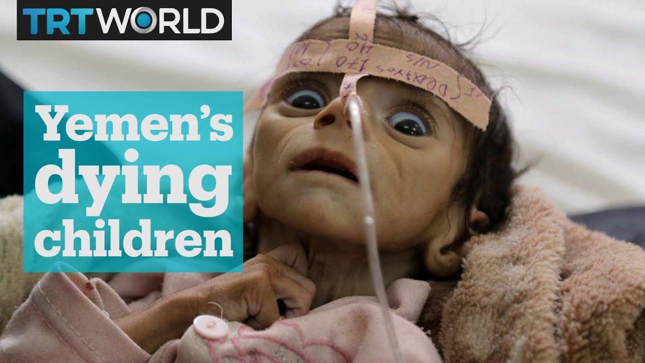 Yemen's dying children - YouTube
