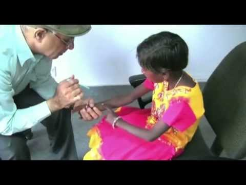 LepClip English 3 How to Diagnose Leprosy