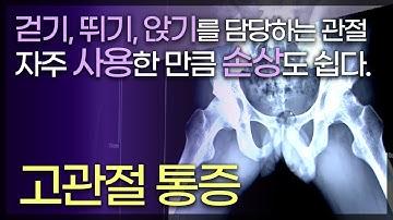 고관절 통증 / 두 다리와 척추를 연결하는 엉덩이 뼈, 고관절 / 자주 사용하는 만큼 손상도 쉽게 되는 고관절 / 고관절통증의진단과치료/TV닥터인사이드 부산MBC 140530 방송