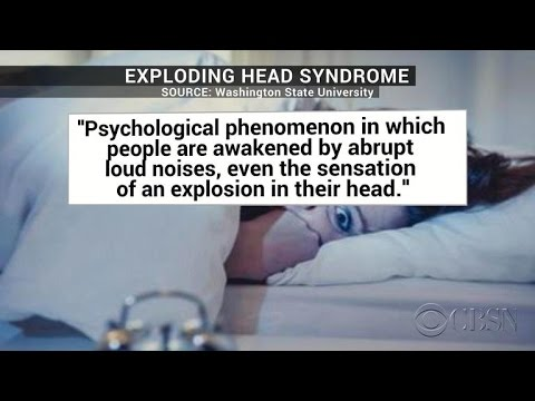 """What's """"exploding head syndrome""""?"""