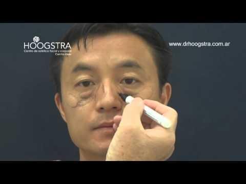 Cirugía de párpados sin cicatrices en pacientes asiáticos (15052)