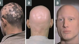 Alopecia Universalis Treatment By Hijama Cupping Therapy