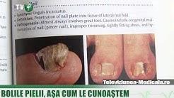 Micozele cutanate sau ciupercile pielii (VIDEO)