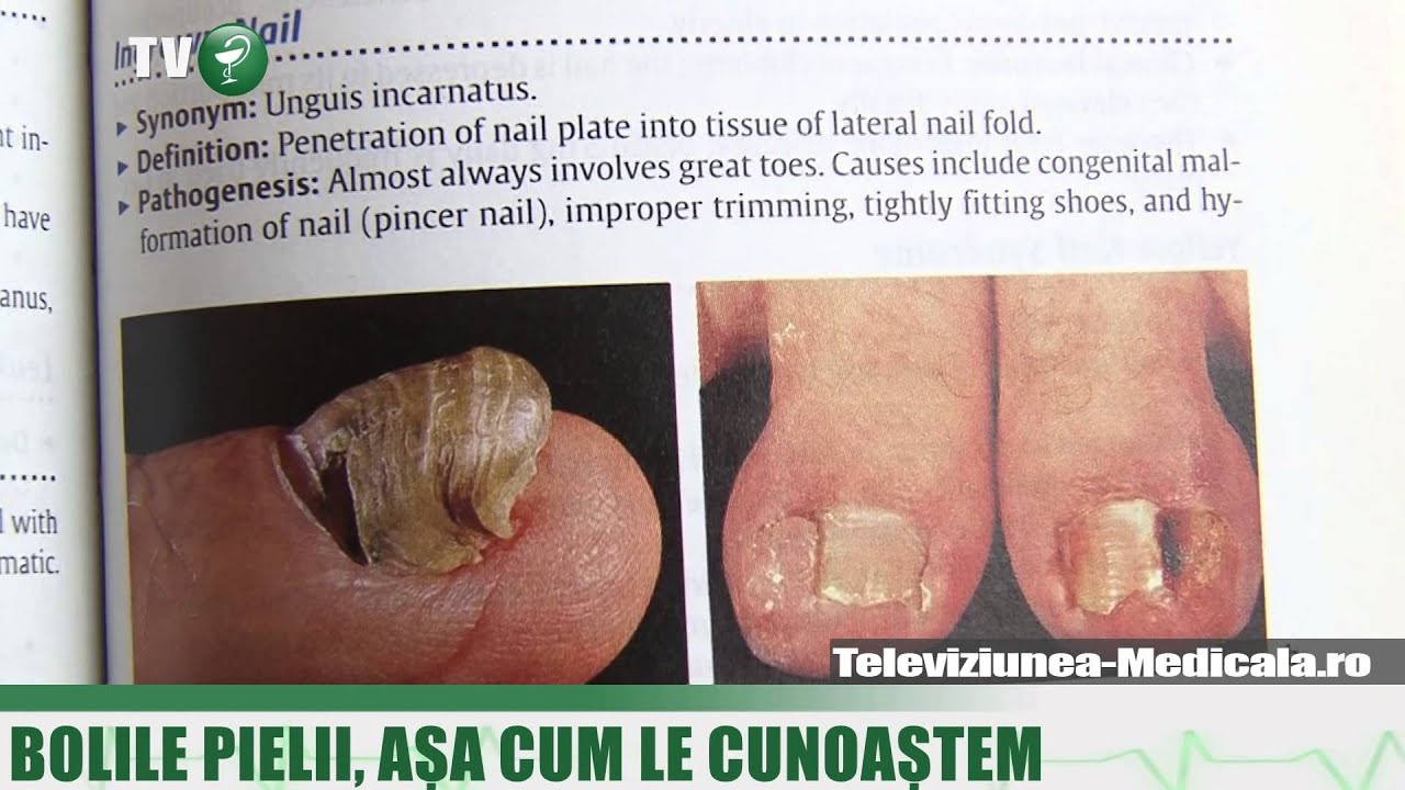 disclaimer despre tratamentul varicozei)