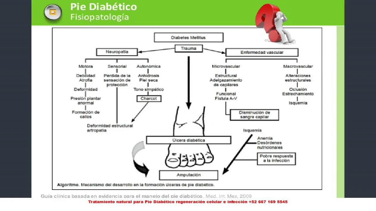 Fisiopatologia del Pie Diabetico - YouTube