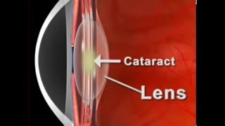 Cataract And Blurry Vision Treatment At Sharp Sight Group of Eye Hospitals