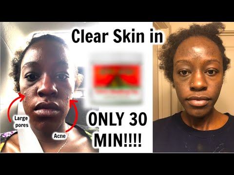 this-mask-cleared-my-skin-in-30-mins!!!!