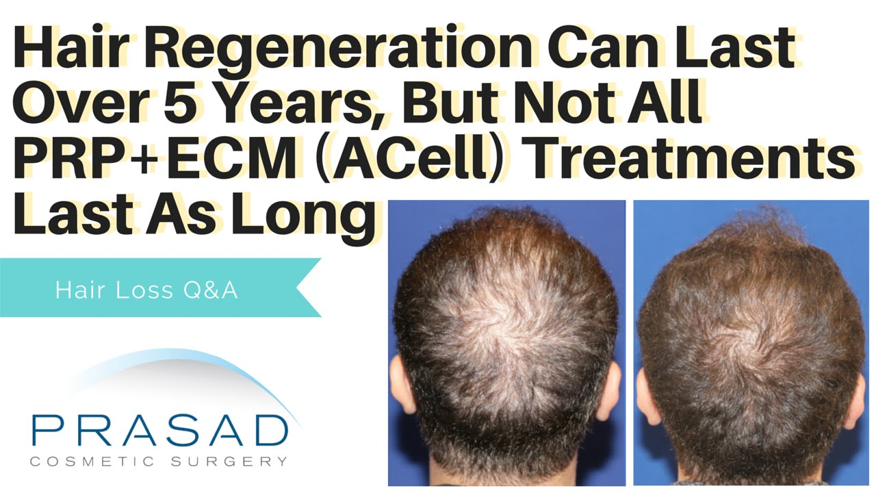 ECM+PRP for Hair Loss- Why Not All Last as Long as Hair