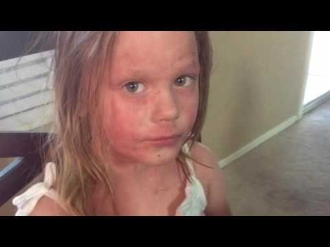 Ava's red skin syndrome journey