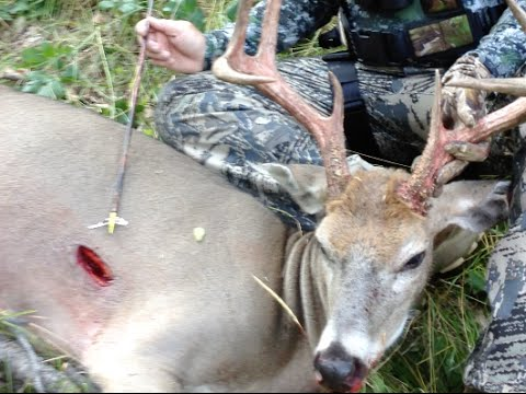 Where To Shoot A Deer While Bowhunting Youtube