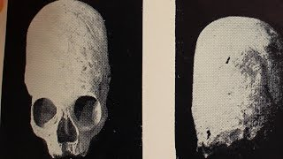Теория заговора Нашествие длинноголовых(Нашествие длинноголовых Загадочные удлиненные черепа из древних захоронений продолжают пополнять крымск..., 2015-10-29T09:14:49.000Z)