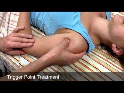 Deltoid Treatment