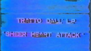 Baixar Roger Taylor - Special For Italy (BBC7) in Rome, 1977 part 7