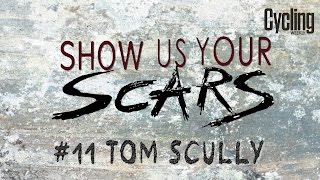 Show us your Scars - Tom Scully | Cycling Weekly