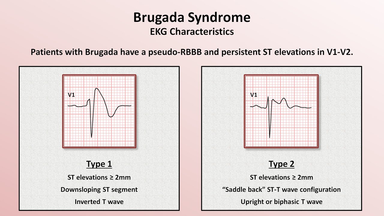 Image result for Brugada syndrome
