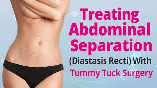 Treating Abdominal Separation (Diastasis Recti) With Tummy Tuck Surgery Thumbnail