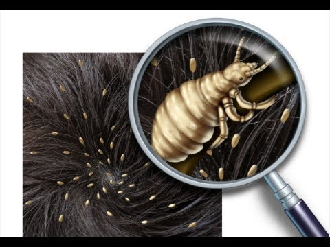 how to get rid of head lice fast - youtube, Skeleton