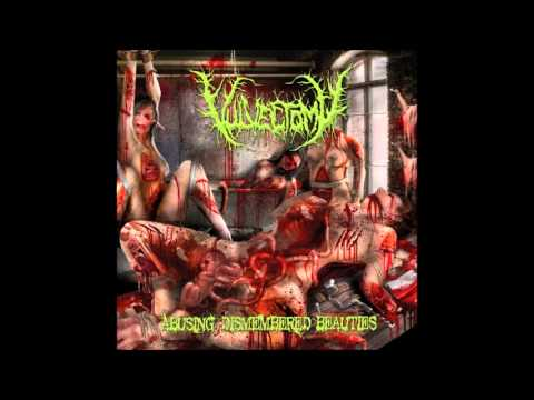 Vulvectomy - Azoospermic Infertility
