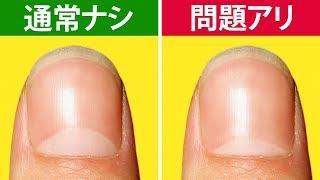 爪が教えてくれる、13の体の警告 thumbnail