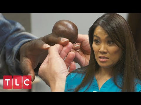 Sneak Peek: New Season Of Dr. Pimple Popper!