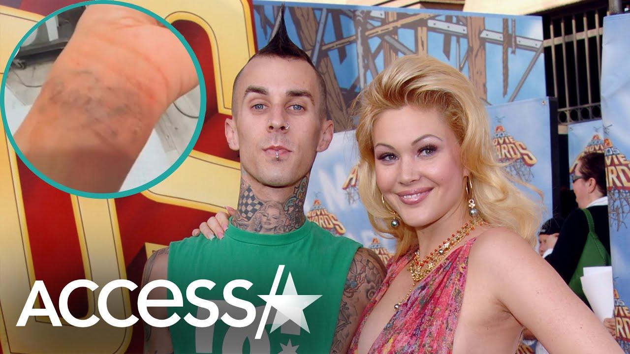 Shanna Moakler Removes Her Travis Barker Tattoo
