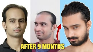 Hair Transplant Journey | Before to 9 Months (SLIDESHOW) |Best Hair Transplant in India