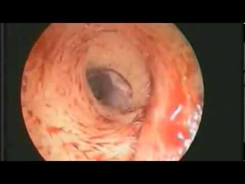 Rùng mình ấu trùng ruồi giấm trong tai người